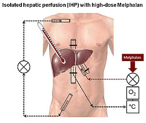 Fig. 4: Isolated hepatic perfusion (IHP) with high-dose Melphalan